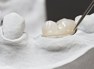 Model of tooth with dental crown restoration