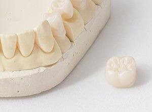 Dental crown sitting on table top