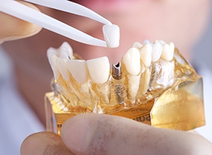 Abington Restorative Dentistry Model of implant supported dental crown