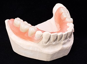 Model of smile with partial dentures